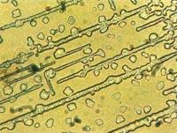 Albendasol die Tabletten von den Würmern